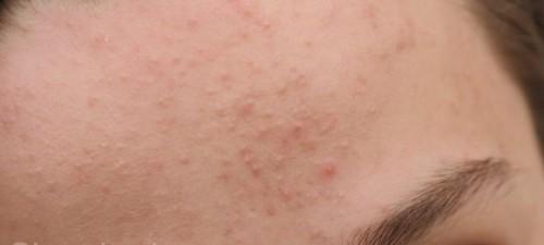 علاج الحبوب الكبيرة تحت الجلد في الوجه