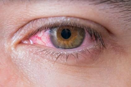 تفسير حلم احمرار العينين في المنام