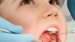 أفضل المضادات الحيوية للأسنان التي توصف للأطفال