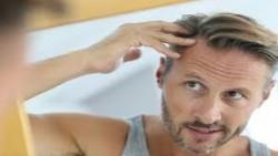أفضل دكتور لعلاج تساقط الشعر في جدة