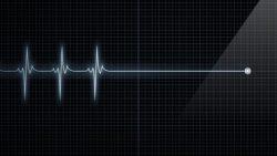 تفسير حلم توقف القلب في المنام